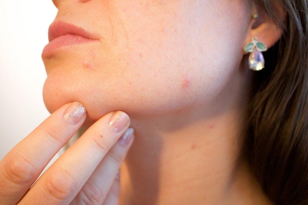acne aloe vera