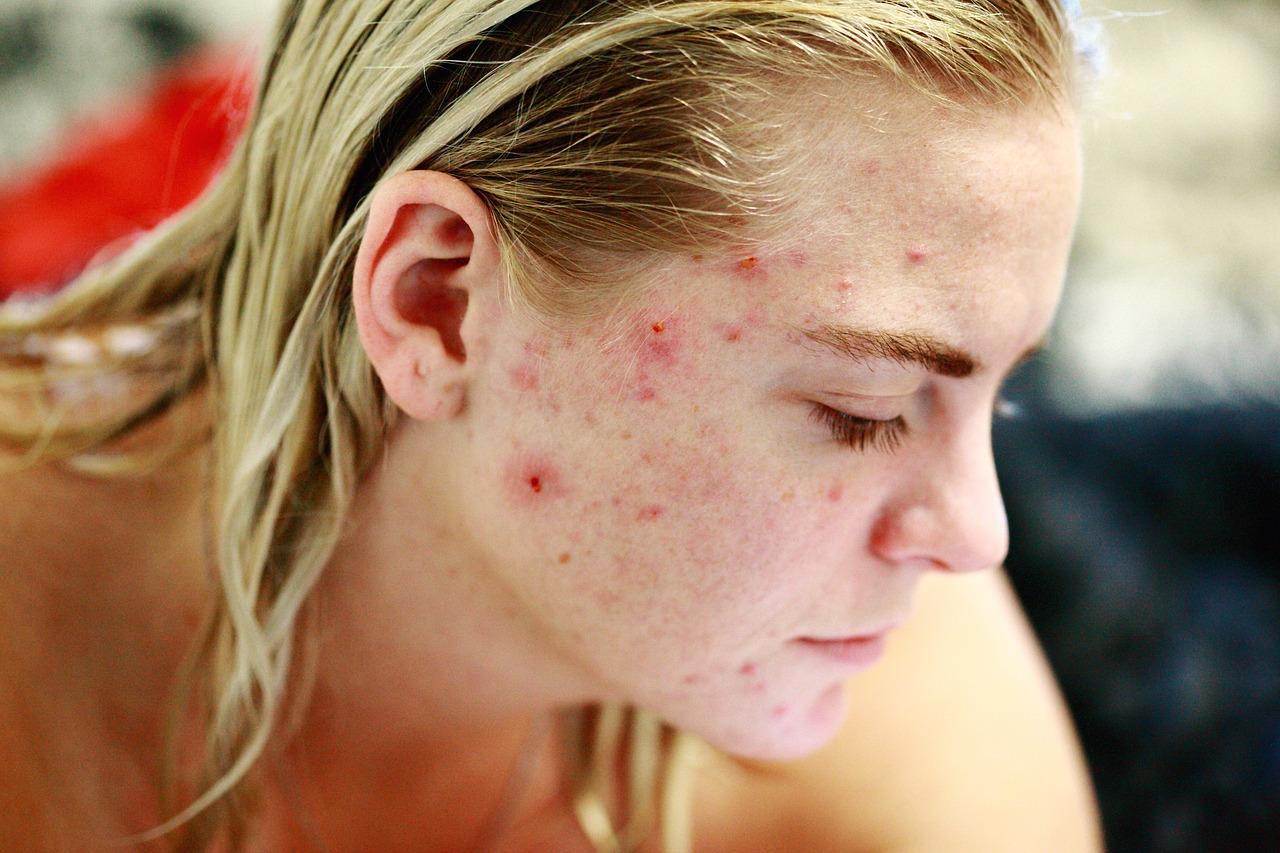 ¿Que son las manchas en la piel?